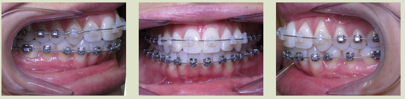 Braces front and sides