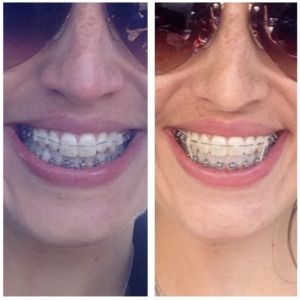 braces side by side
