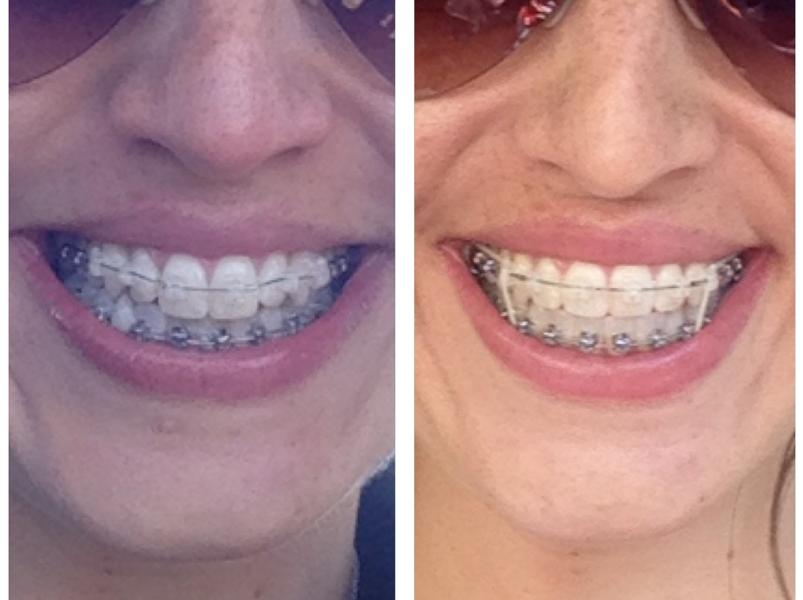6 Months in braces!