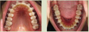 8 month braces photos