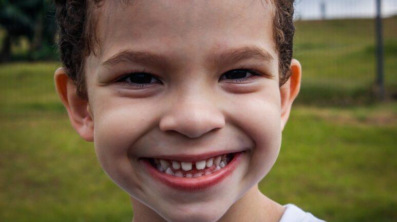 Do Gaps in the Teeth Always Mean Braces?