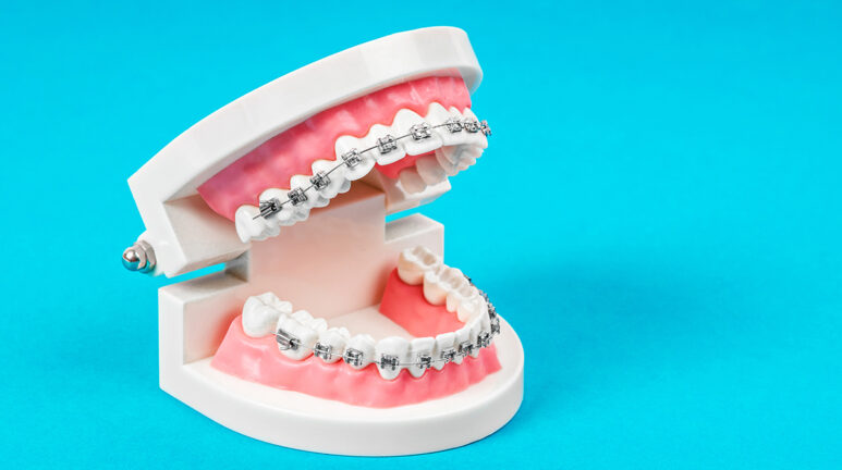 Summer Survival Guide to Braces