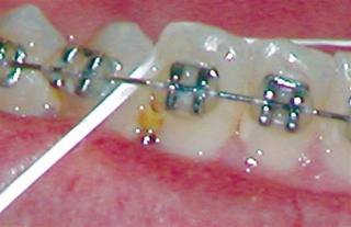food caught between teeth